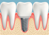 Dental Implants from Liberty Family Dentistry